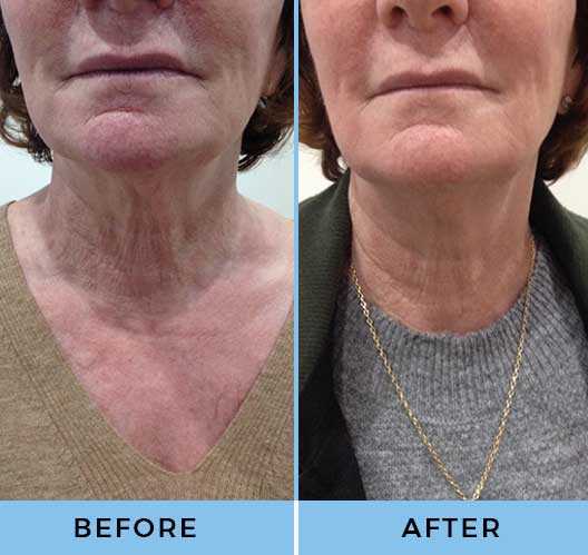 Skin Deep Aesthetics HIFU Clinic Leicestershire